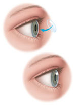 DSAEK | Corneal Transplants | Port Huron